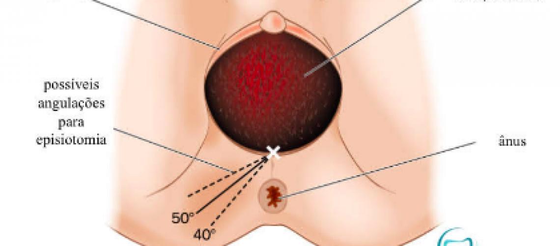 A passagem da cabeça do bebê pelo canal do parto causa estiramento dos órgãos aos redor da vagina, necessitando cuidados adicionais para que não ocorram lesões nesse local