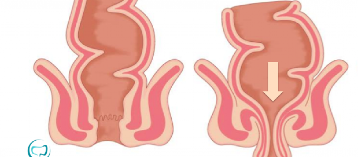 A eversão do reto com exteriorização pelo ânus é a principal manifestação clínica do prolapso retal